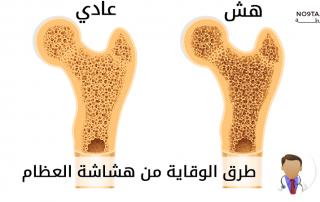 طرق الوقاية من هشاشة العظام