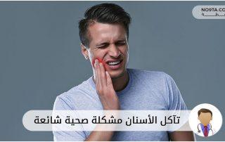 تآكل الأسنان مشكلة صحية شائعة