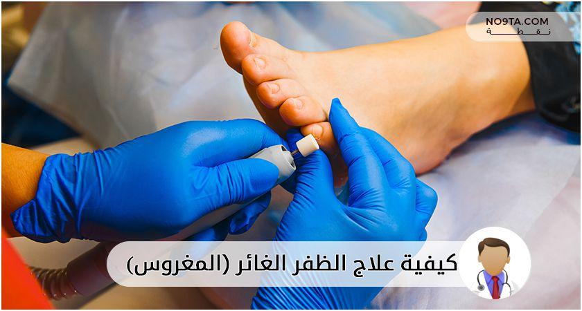 كيفية علاج الظفر الغائر-المغروس