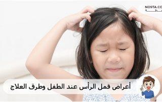 أعراض قمل الرأس عند الطفل وطرق العلاج