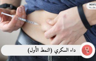 داء السكري النمط الأول
