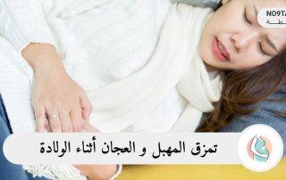 تمزق المهبل و العجان أثناء الولادة