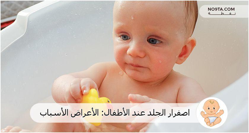 اصفرار الجلد عند الأطفال
