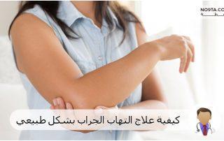 كيفية علاج التهاب الجراب بشكل طبيعي