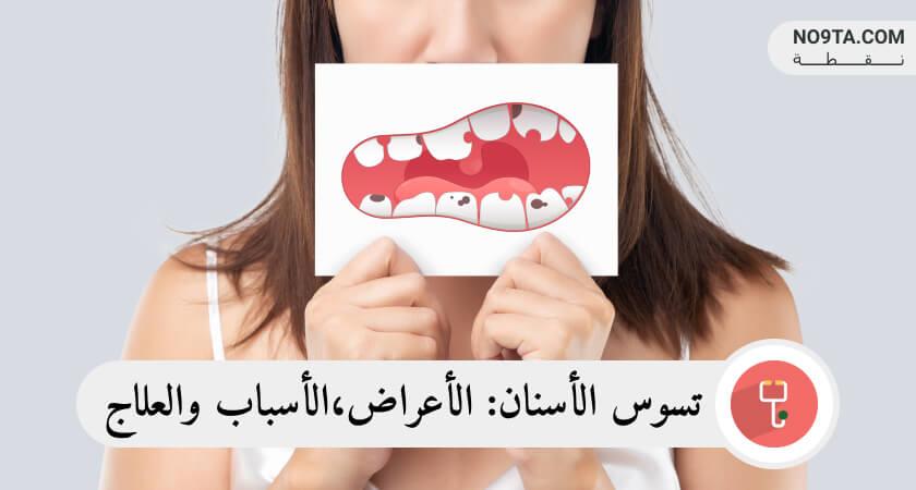 تسوس الأسنان الأعراض الأسباب والعلاج